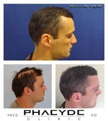 Transplantacia Vlasov Implantacia Vlasov pred po vysledky phaeyde p033
