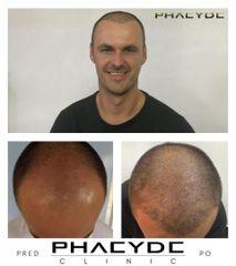 Transplantacia Vlasov Implantacia Vlasov pred po vysledky phaeyde p034