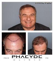 Transplantacia Vlasov Implantacia Vlasov pred po vysledky phaeyde p035