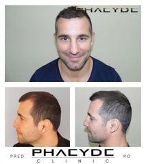 Transplantacia Vlasov Implantacia Vlasov pred po vysledky phaeyde p037