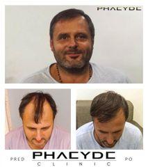 Transplantacia Vlasov Implantacia Vlasov pred po vysledky phaeyde p039
