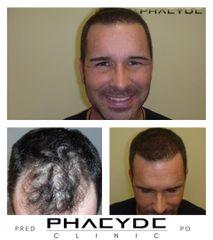 Transplantacia Vlasov Implantacia Vlasov pred po vysledky phaeyde p038
