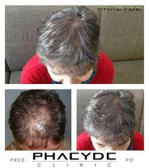 Transplantacia Vlasov Implantacia Vlasov pred po vysledky phaeyde p042