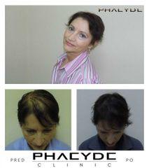 Transplantacia Vlasov Implantacia Vlasov pred po vysledky phaeyde p046