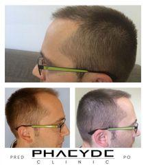 Transplantacia Vlasov Implantacia Vlasov pred po vysledky phaeyde p053