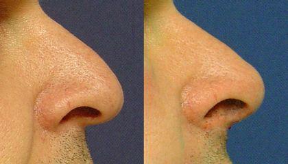 Metacrill zahnutý nos vyrovnání