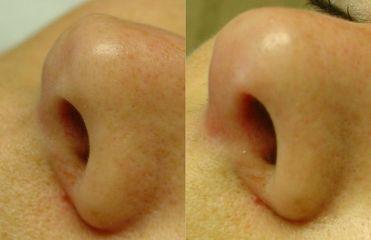 Metacrill nos špička