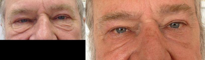Pacient 69 let před operací dolních víček