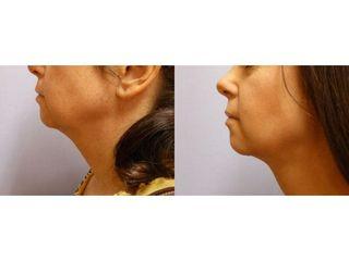 Liposukce (odstranění) podbradku