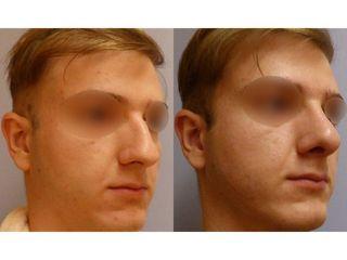 Operace nosu u muže