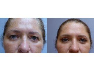 Korekce horních očních víček (blefaroplastika)
