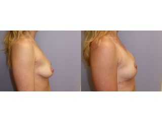 Modelace prsou
