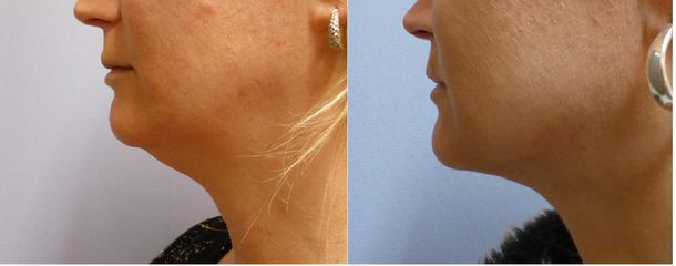 Korekce oblasti brady/podbradku pomocí liposukce