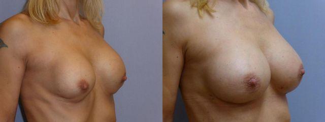Výměna implantátu