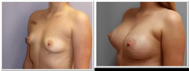 Odstranění asymetrie prsou