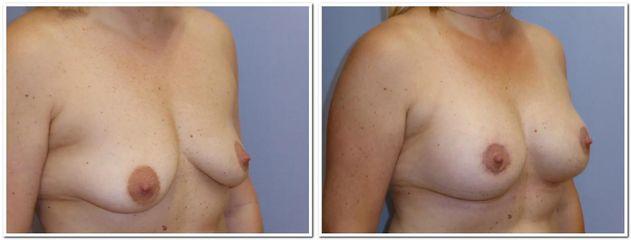 před    OP4 modelace s implantaty