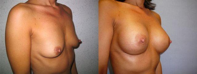 zvetseni prsou 5 pred