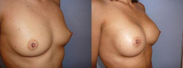 zvetseni prsou 6 pred