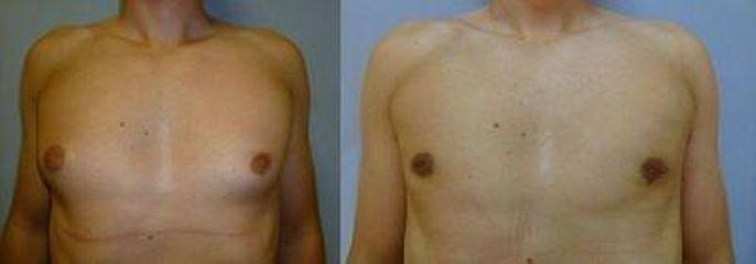 gynekomastie 1 tb