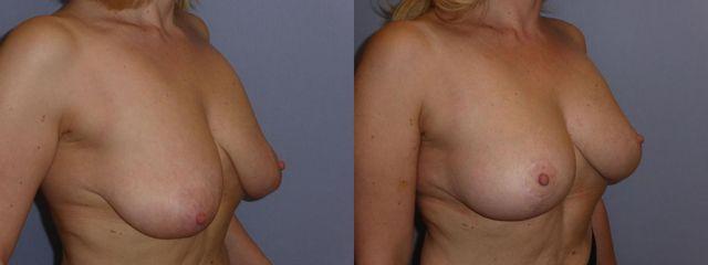 Modelace prsou, foto před a 9 měsíců po mastopexi
