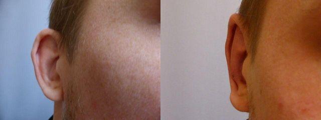 Plastická operace uší (Otoplastika)