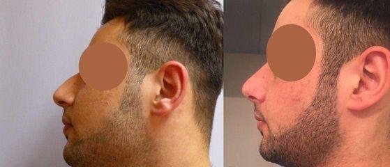Operace nosu (Rhinoplastika)