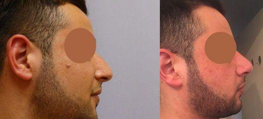 Plastická operace nosu (Rhinoplastika)
