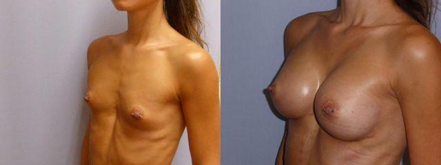 Zvětšení prsou anatomickými implantáty