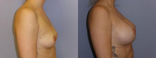 Zvětšení prsou po dvou letech od operace