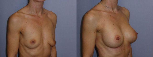 zvětšení prsou (Augmentace)