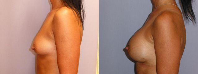 Augmentace prsou s anatomickými implantáty