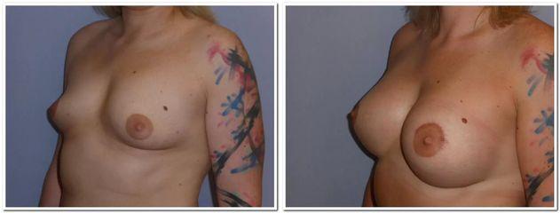 Zvětšení tubulósních prsou