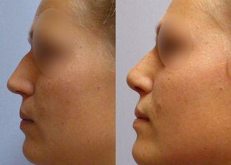 Plastika nosu (Rhinoplastika) - MUDr. Kamila Šormová