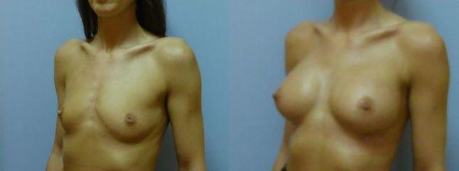 Zvětšení prsou (Augmentace) - MUDr. Kamila Šormová