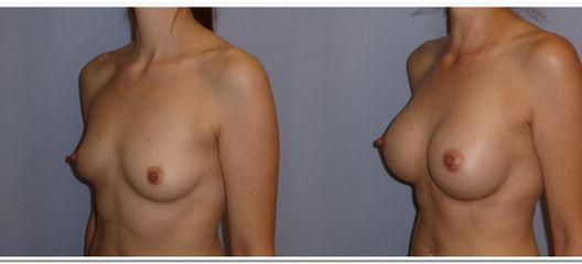Zvětšení prsou - MUDr. Kamila Šormová