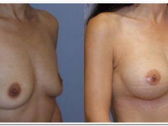 Zvětšení prsou - 792818
