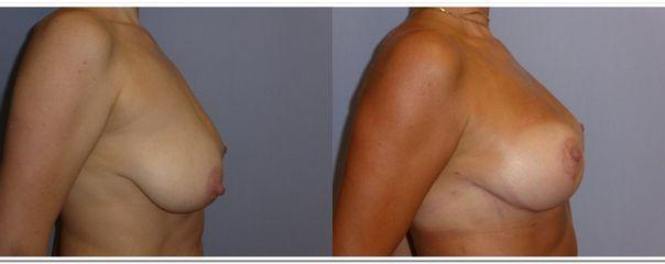 Modelace prsou - MUDr. Kamila Šormová
