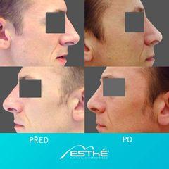 Plastika nosu (Rhinoplastika) - Esthé a. s. - klinika plastické chirurgie