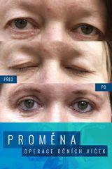 Operace očních víček (Blefaroplastika) - Esthé a. s. - klinika plastické chirurgie