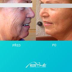 Facelift - Esthé a. s. - klinika plastické chirurgie
