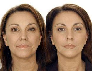 anti aging pred