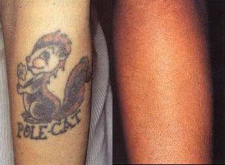 tetovani pred