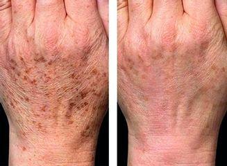 pigmentace ruce před po laser