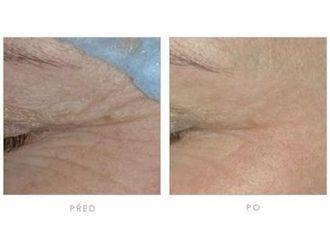 Odstranění vrásek pomocí botulotoxinu - 700866