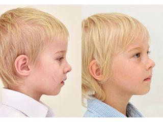 Klinika YES VISAGE - klinika estetické medicíny a plastické chirurgie (10).jpg