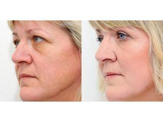 Klinika YES VISAGE - klinika estetické medicíny a plastické chirurgie (31).jpg