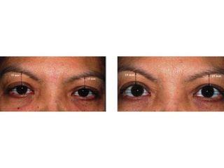 Klinika YES VISAGE - klinika estetické medicíny a plastické chirurgie (177).jpg