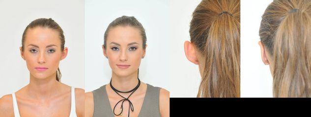 Operace odstátých uší u mladé ženy