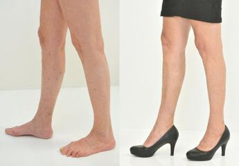 sklad nohy 2