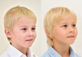 Laserové odstranění jizvy u dítěte